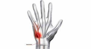 Alivia a pressão sobre o nervo ulnar e resolves o problema de dedos dormentes.